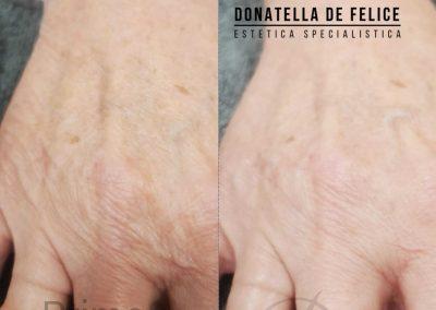 Donatella De Felice Mani